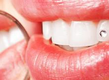 Prestiti per Pagare il Dentista e le Cure Odontoiatriche